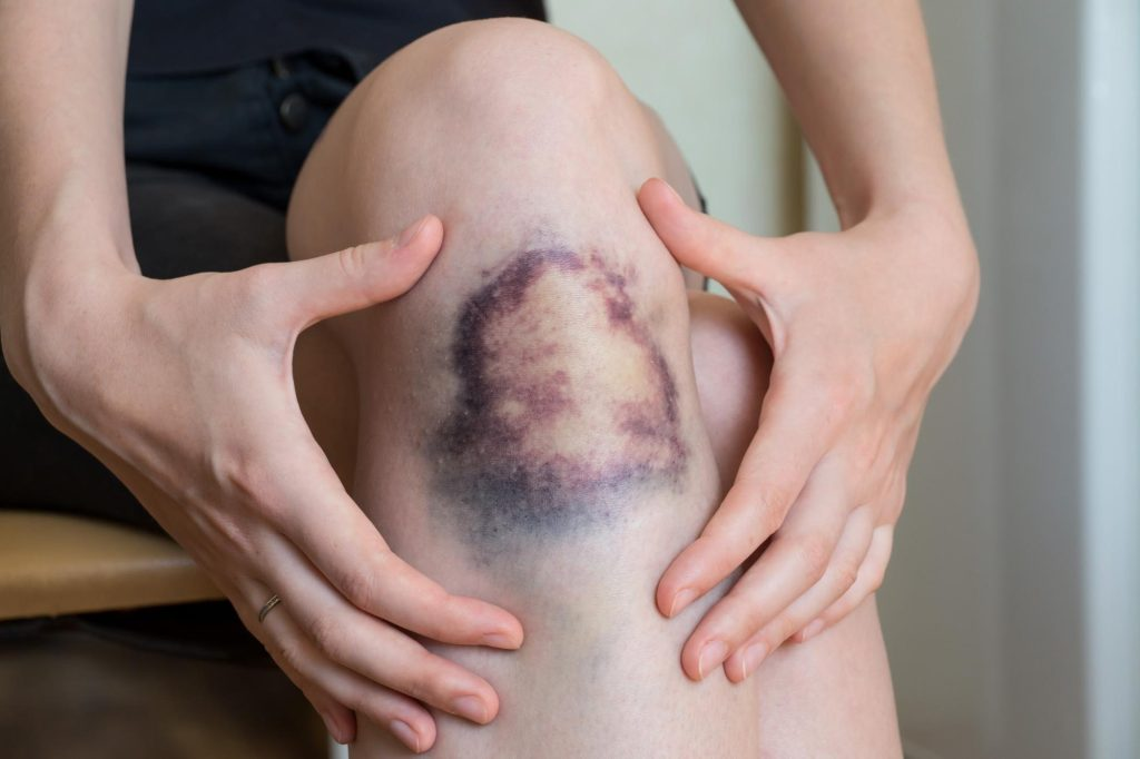 Large bruise covering knee of woman, while she frames the bruise with her hands.